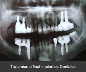 resultado final implantes dentales