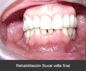 rehabilitacion bucal con implantes dentales