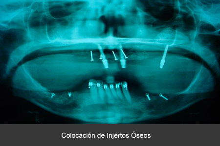 Rehabilitación bucal con Implantes dentales CDMX