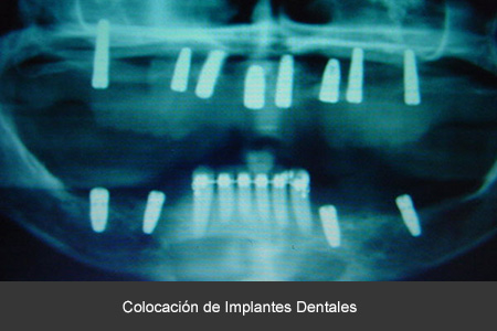 Rehabilitación bucal con implantes dentales